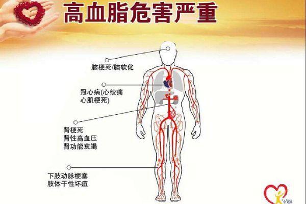 高血脂危害严重