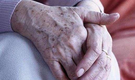 手上的老年斑